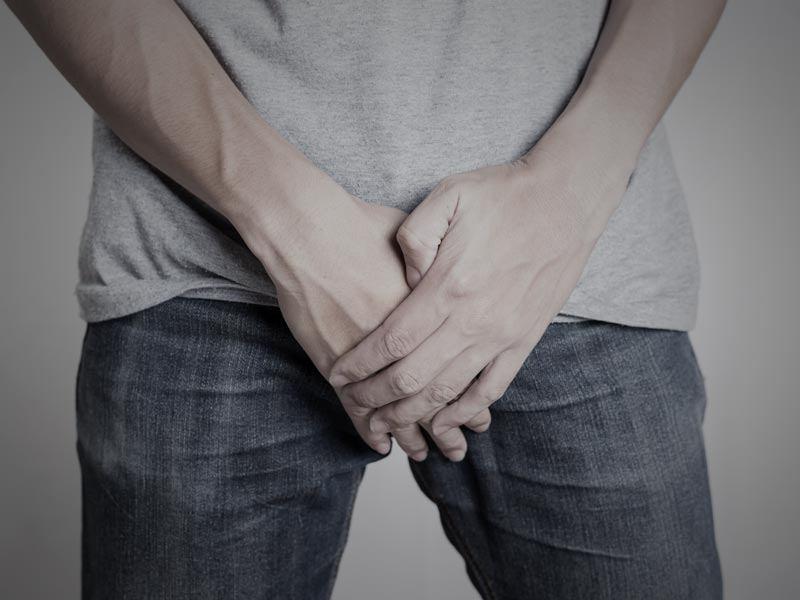 Cicatriz de la operación de alargamiento de pene